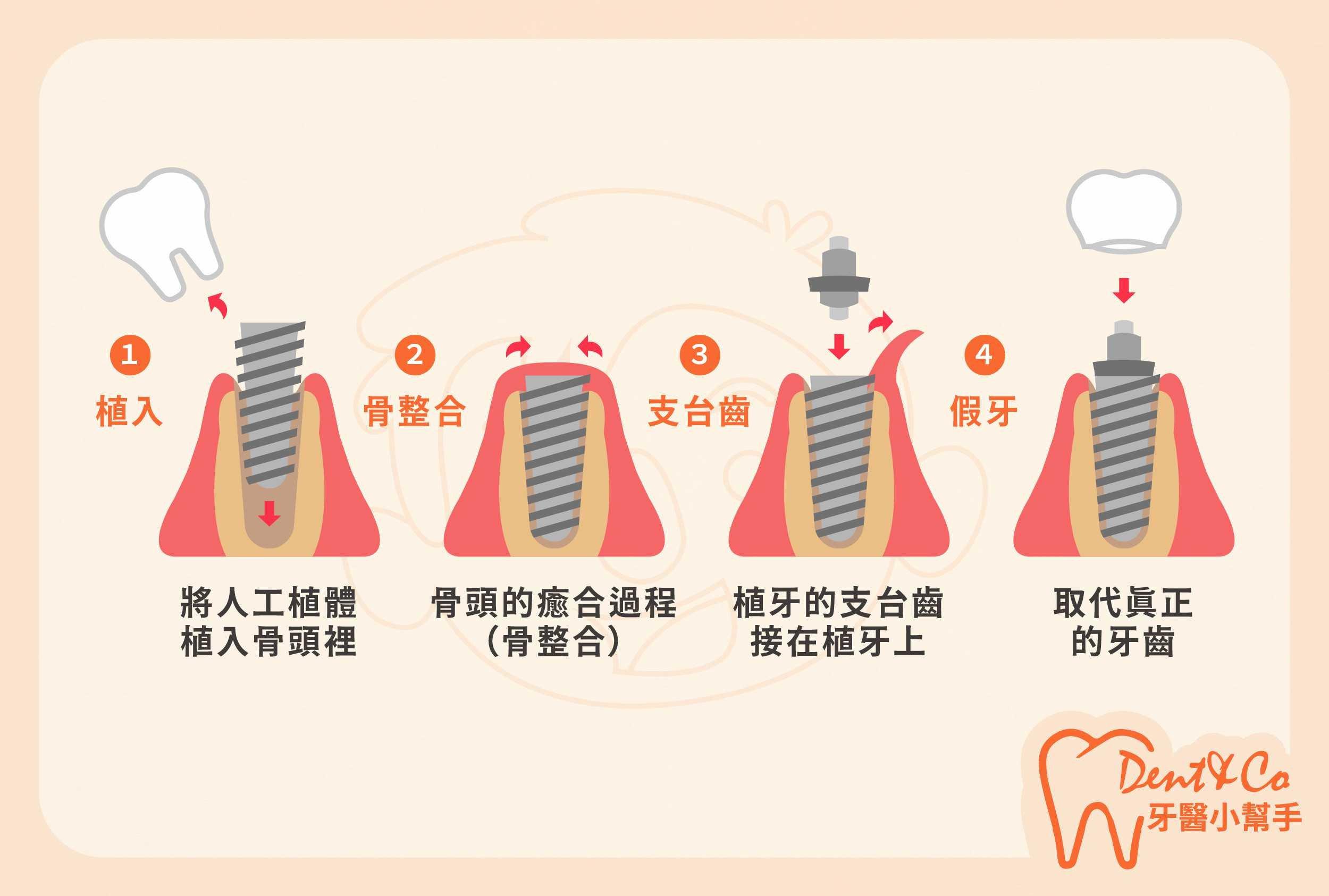 3.植牙流程介紹02-大圖.jpg