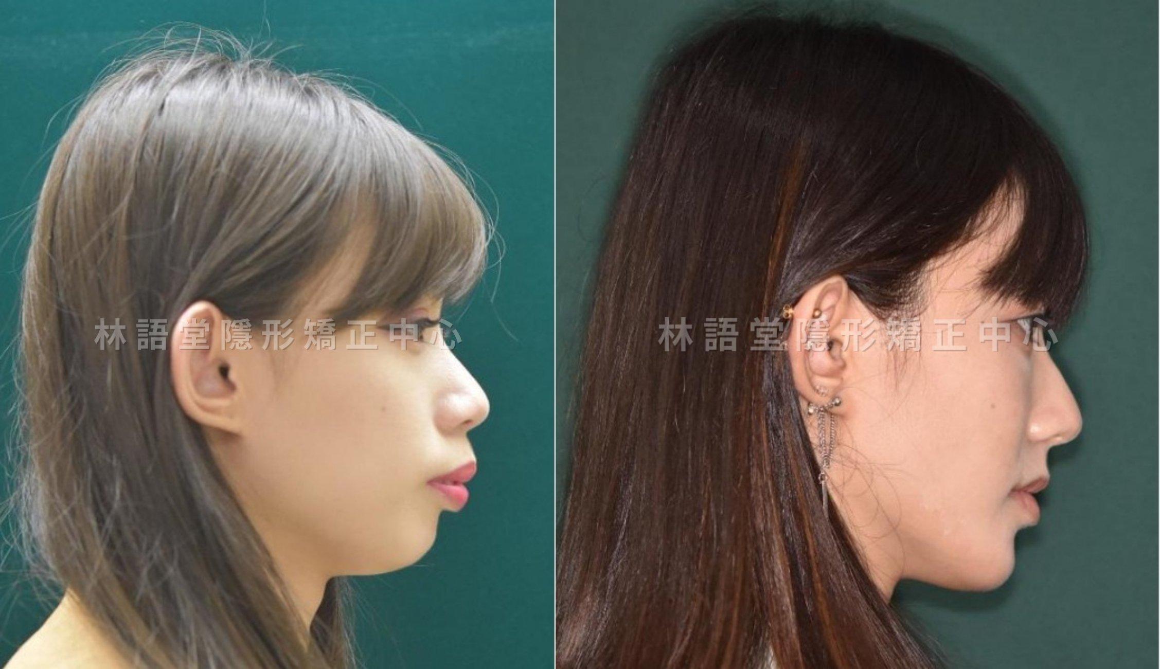 矯正案例:成人下顎骨後縮、明顯暴牙、突嘴.jpg
