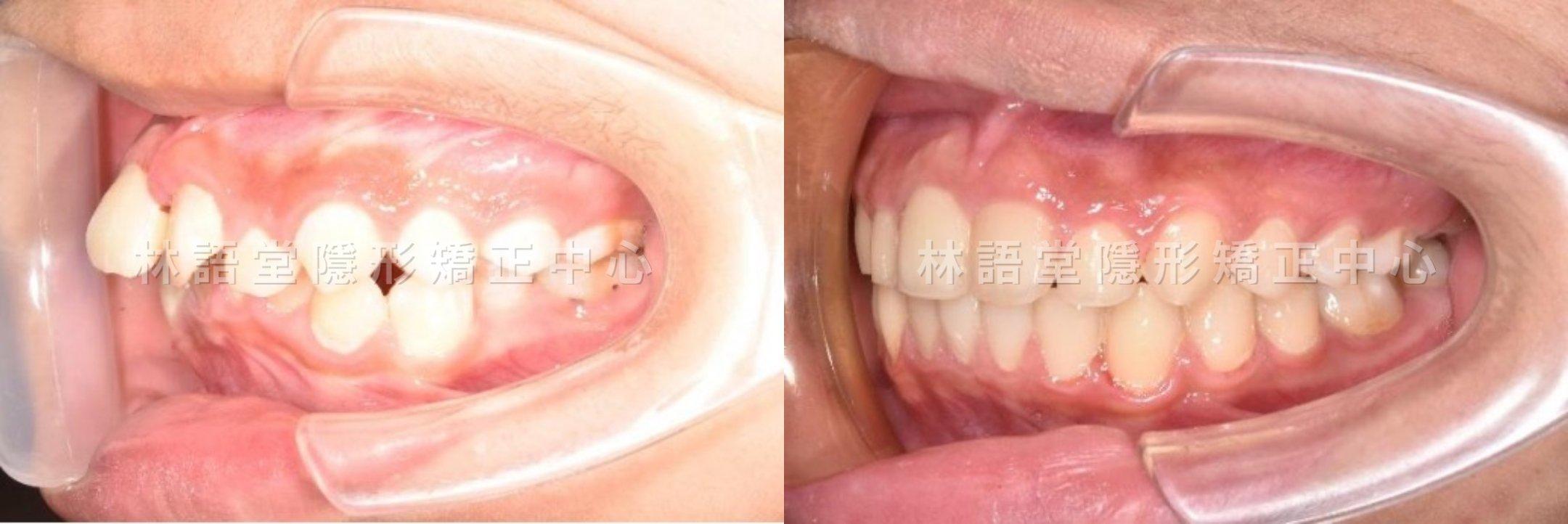 矯正案例:兒童下顎骨後縮、牙齒擁擠、嘴巴閉不起來.jpg