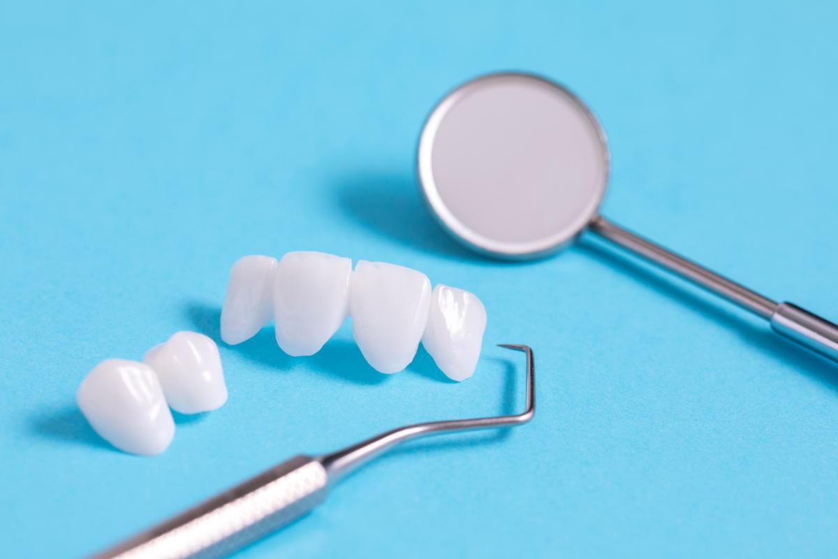 假牙優缺點png
