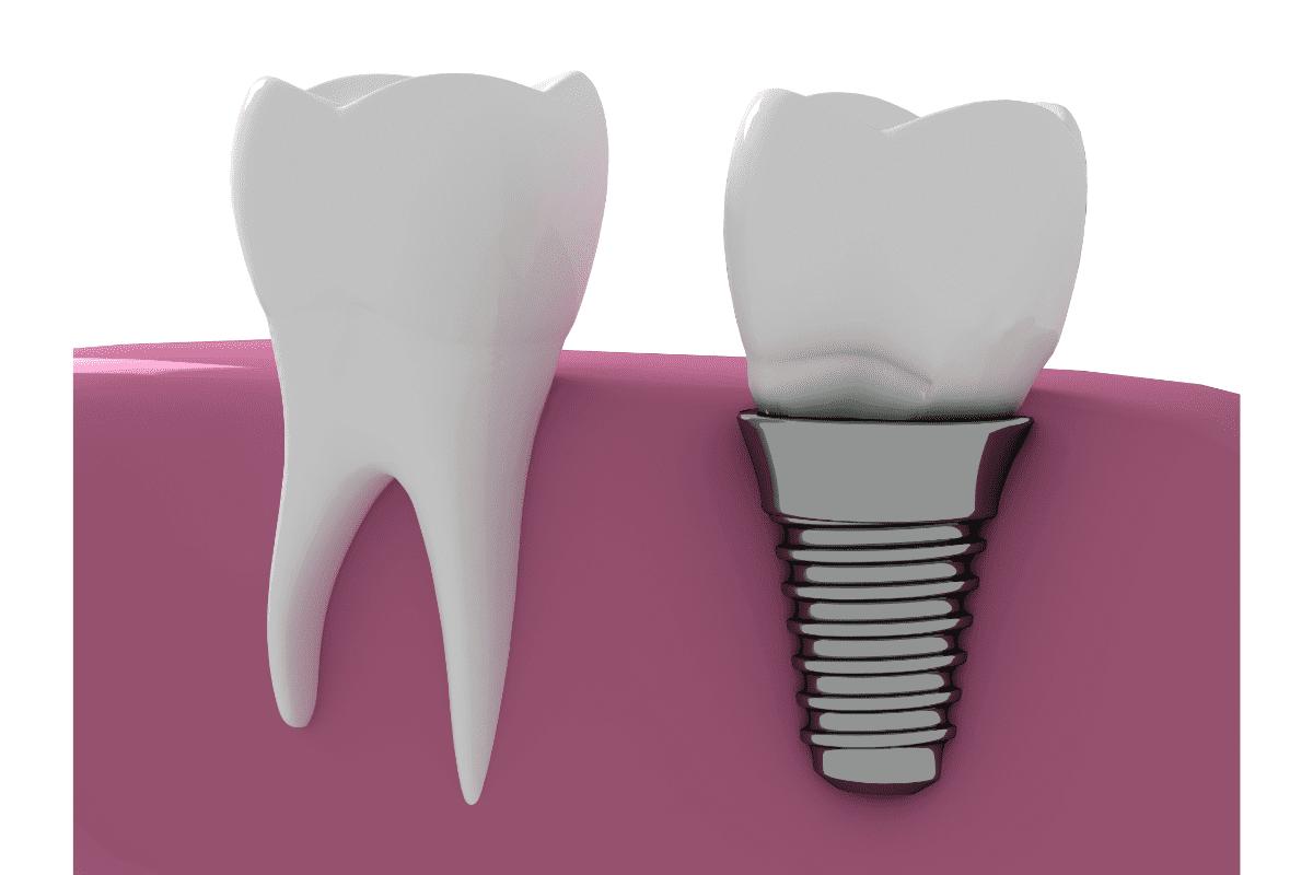 植牙的原理.png