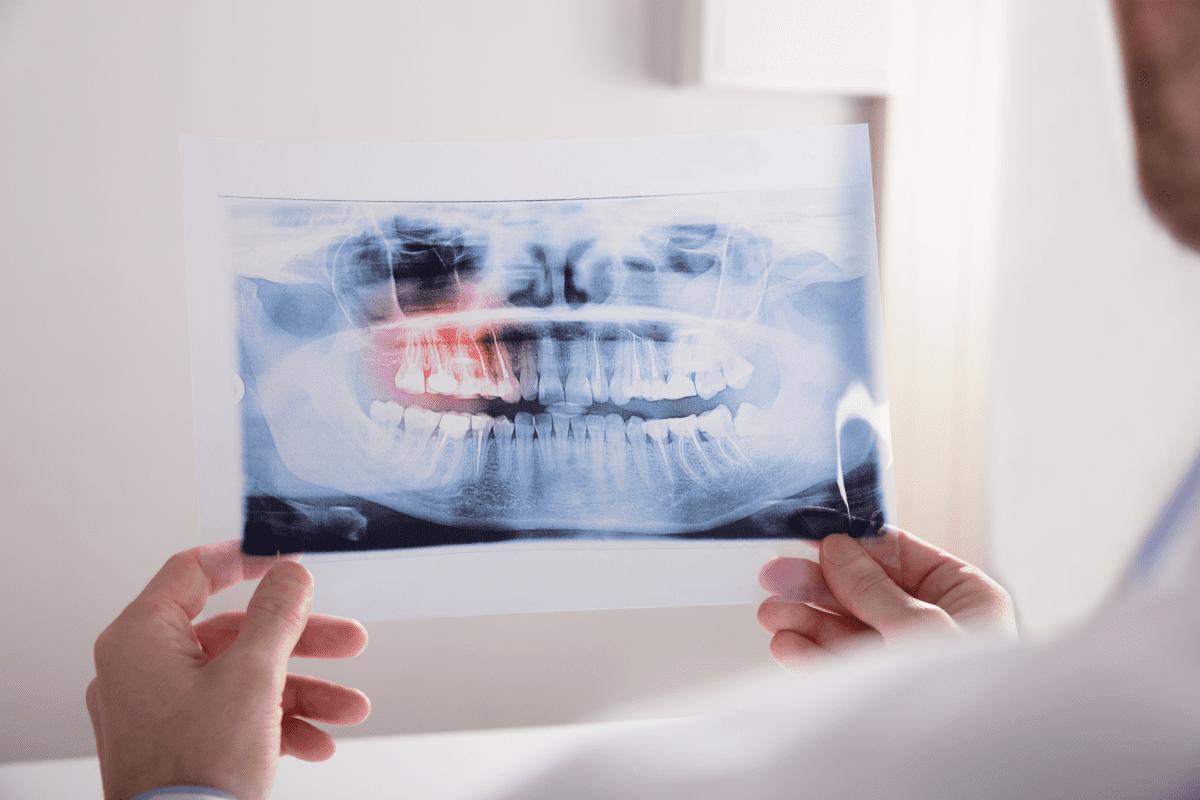 牙痛 - 牙周病、智齒痛、蛀牙.png